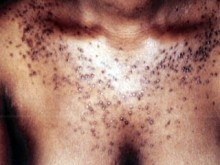 skin-bleaching (1)